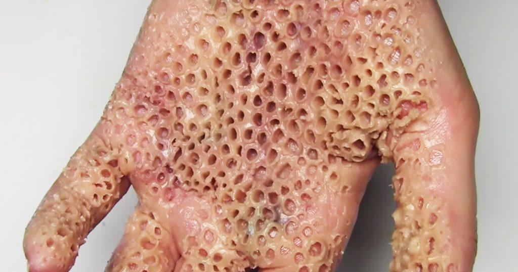 Trypophobie : si ces photos de trous vous mettent mal à l