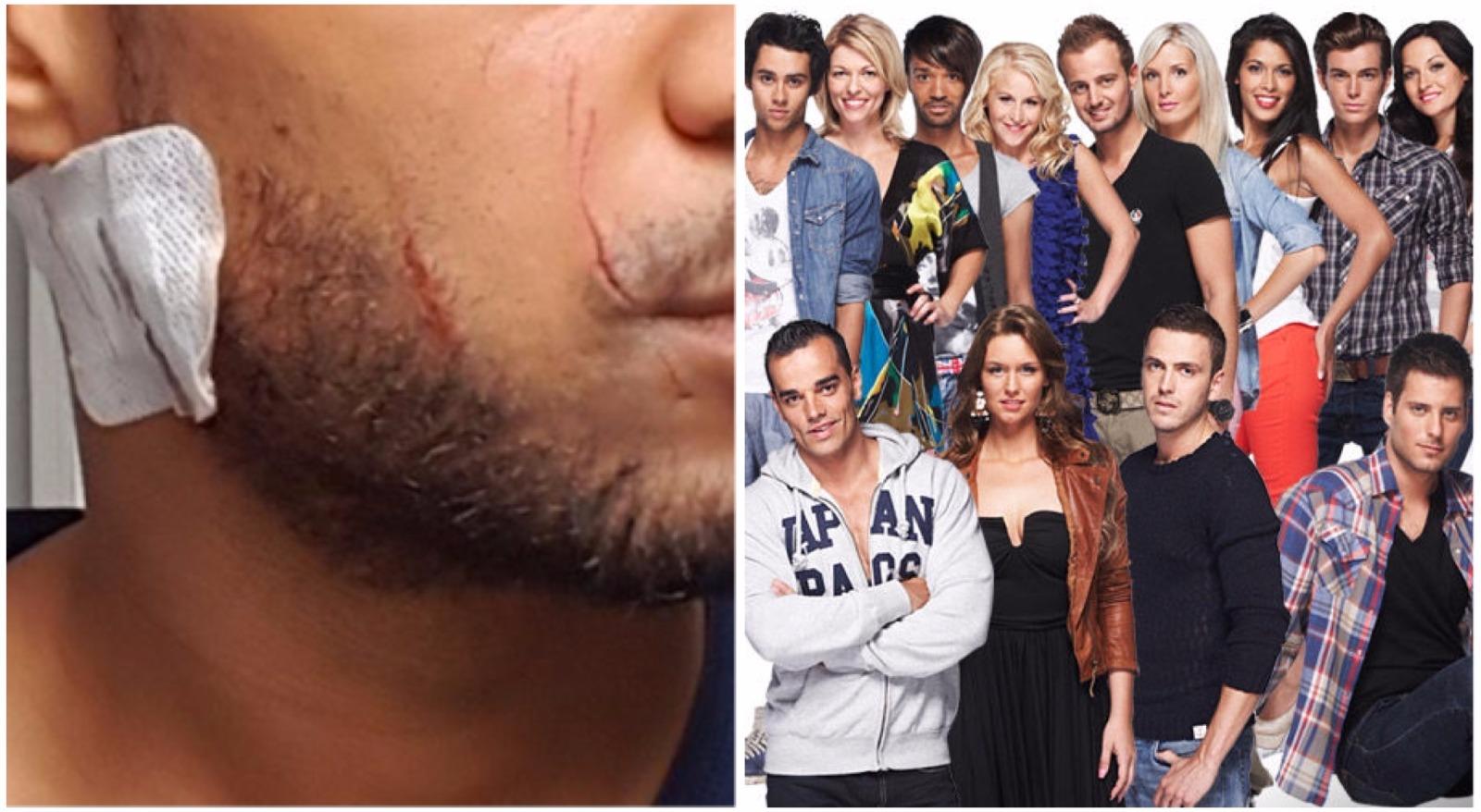 Secret Story : un candidat victime d'une violente agression homophobe, les photos choc !