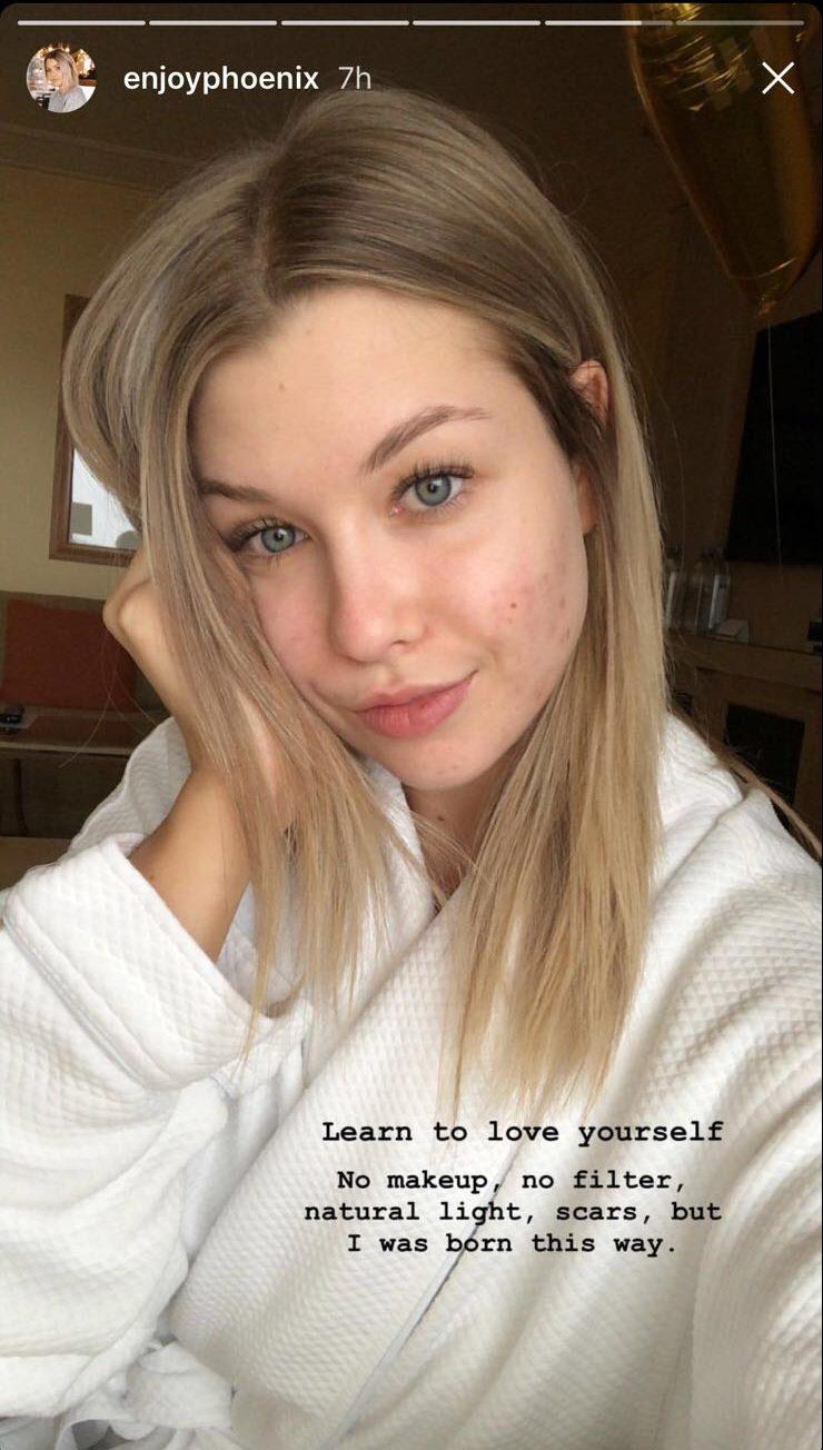 Enjoyphoenix cicatrices sans maquillage elle se for Www elle com au