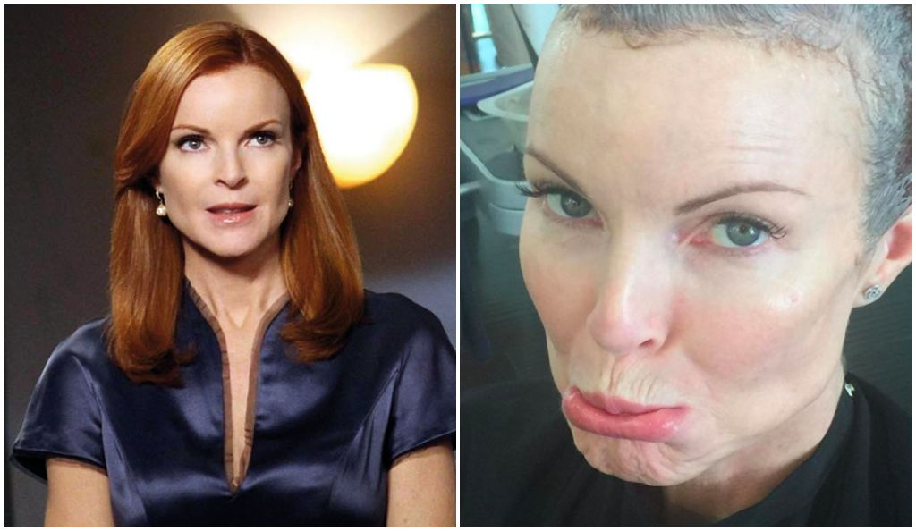 Marcia Cross, évoque son combat contre le cancer — Desperate Housewives