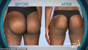Avant : les implants ratés et après : l'opération du Dr Dubrow !