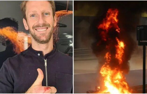 Romain Grosjean : il montre ses brûlures en dévoilant sa main sa bandages